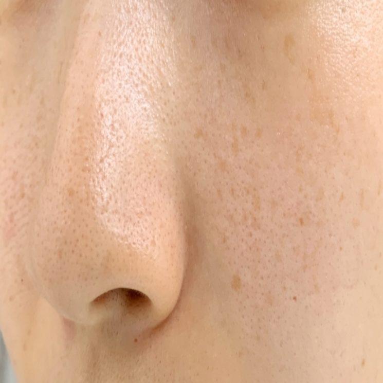 シミの原因は乾燥だった!体の内側と外側から保湿してシミを予防