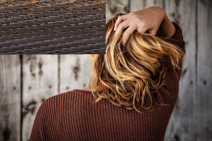 頭皮ニキビが治らない!毎日のシャンプーで辛い頭皮ニキビを正しくケア